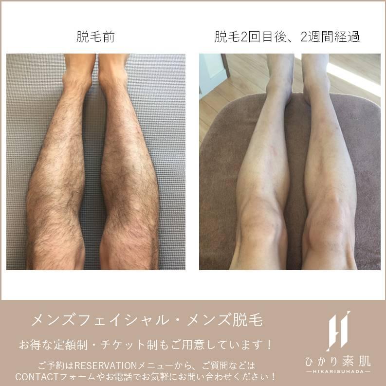 足脱毛before-after