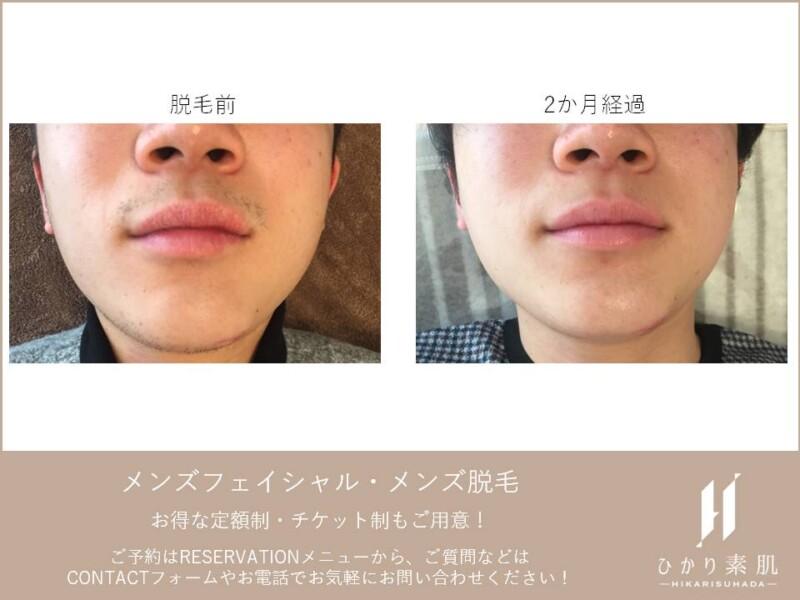ひげ脱毛before-after